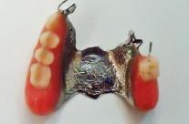 Djelomične (parcijalne) proteze
