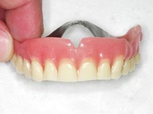 Proteza na implantatima