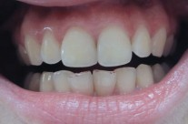 Parodontologija